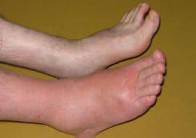 pieds gonflés - 10 choses à vérifier avant d'acheter des chaussures en cuir
