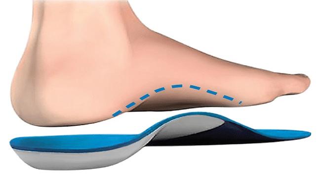 Ici une semelle orthopédique pour les pieds plats.