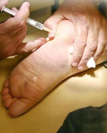 transpiration des pieds botox - Transpiration des pieds : tout ce que vous devez savoir